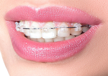 Woman smiling with ceramic braces