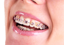 Woman smiling showing teeth with tradtional braces