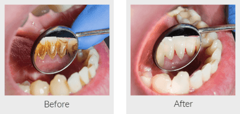 Examaning plaque before and after a dental cleaning