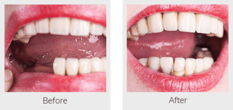 Partial removable denture before and after