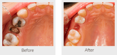 Tooth extraction before and after
