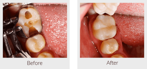 dental filling over a broken tooth before and after