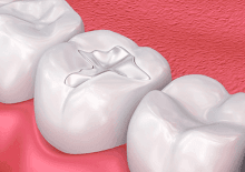 Illustrative image of a dental filling