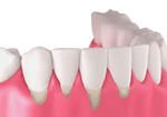 Illustrative image of teeths with gum disease