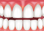 Illustrative image of receding gums
