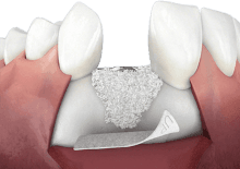 Illustrative image of bone grafting in the jaw