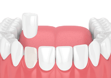 dental veneer placement illustrative image