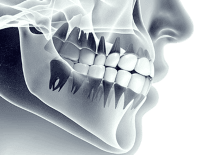 Dental x-rays illustrative image