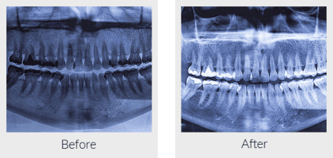 Panaromic teeth radiograph before and after