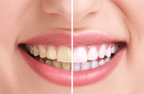 Smile with teeth whitening before and after