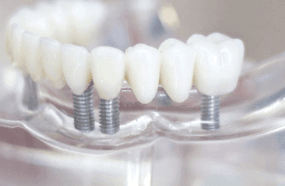 3 dental implants with crown and bridge