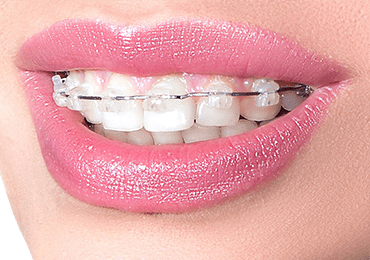 Smile showing teeth with ceramic braces