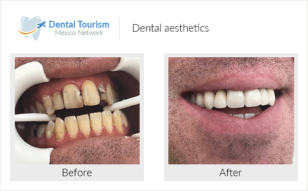 Teeth before and after of patients in Ajijic