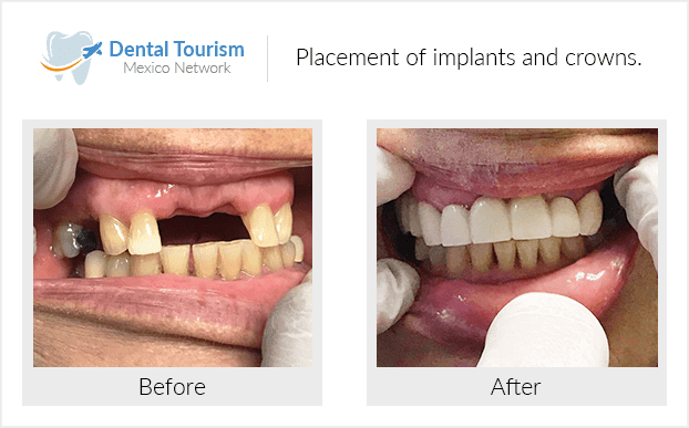 Teeth before and after of patients in Los Algodones