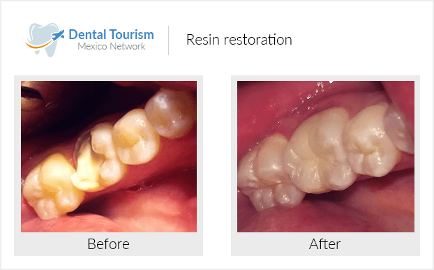 Teeth before and after of patients in Cancún