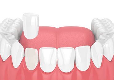 Illustrative image for dental veneers