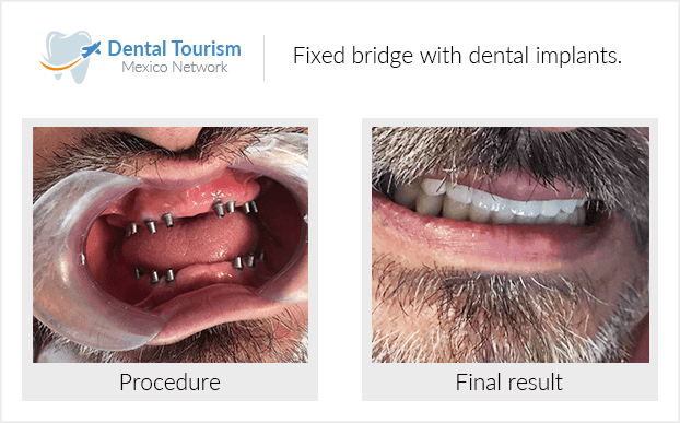 Teeth before and after of patients in Ciudad Juárez