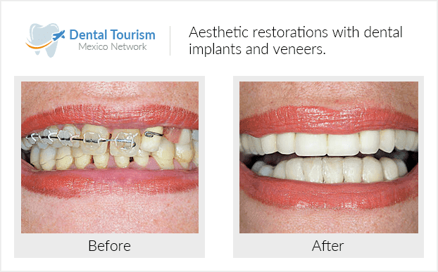 Teeth before and after of patients in Mazatlán