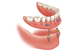 Snap on denture over four implants