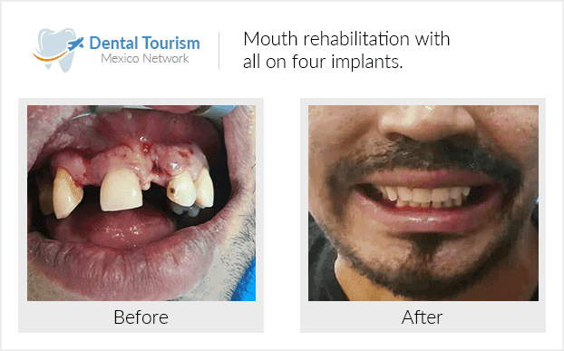 Teeth before and after of patients in Mexico City