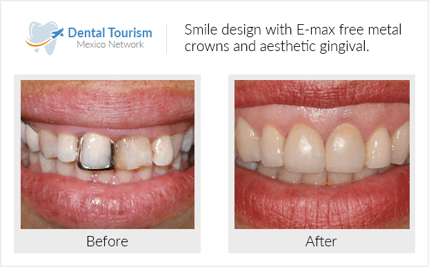 Teeth before and after of patients in Monterrey