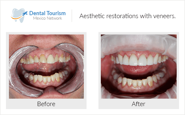Teeth before and after of patients in Nogales