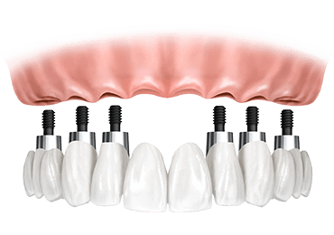 Illustrative image for all on six implants procedure