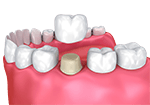 White dental crown
