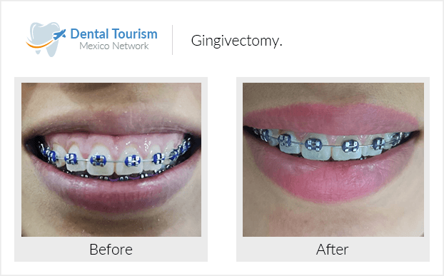 Teeth before and after of patients in Oaxaca