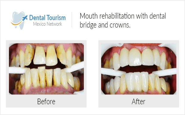 Teeth before and after of patients in San José del Cabo