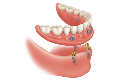 Illustrative image for snap on dentures procedure