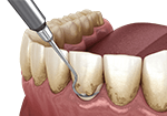 Removing dental plaque with teeth scaling