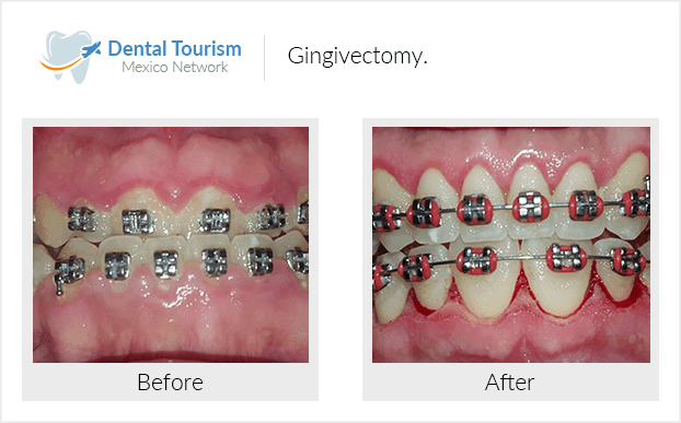 Teeth before and after of patients in Tijuana