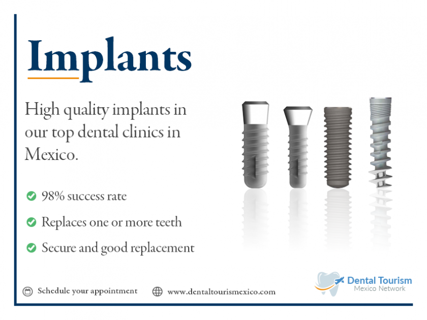 4.- Dental Implants, Veneers and crowns Best Prices in Mexico