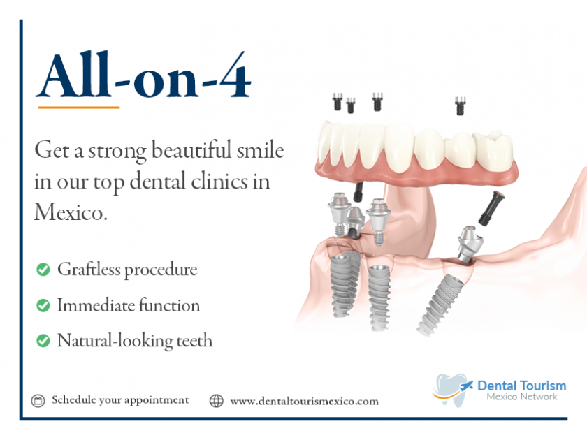 Dental Implants In Mexico Hi quality Low cost, see our price list