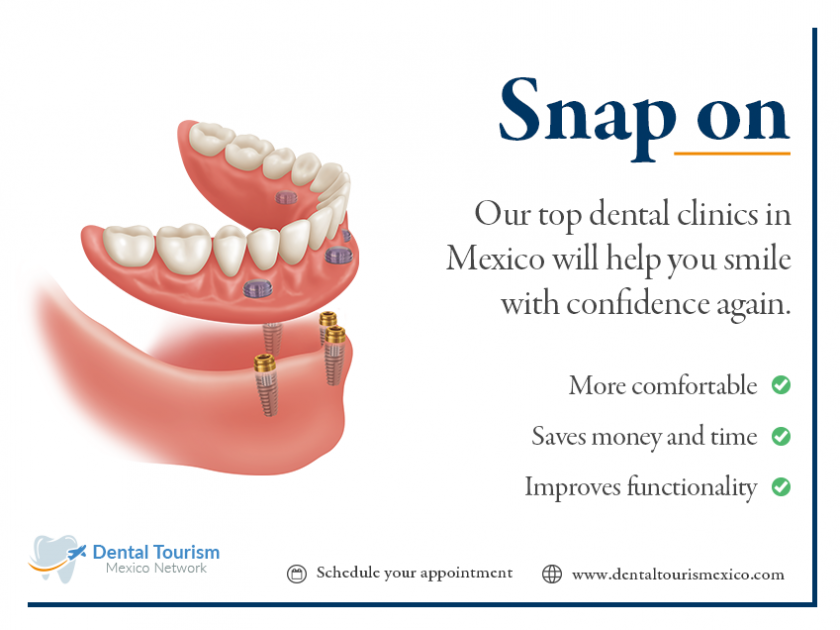 2 .-Snap on dentures Best Prices in Mexico