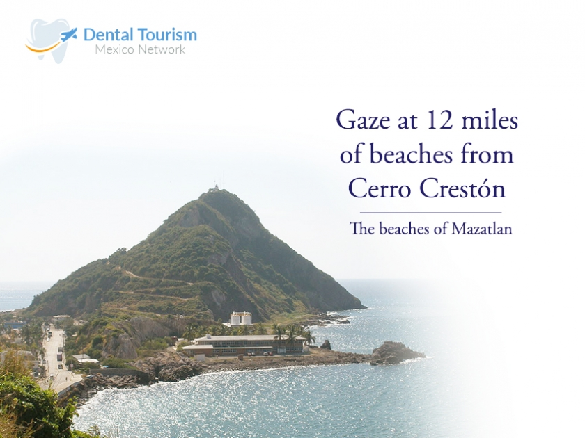 The top 4 reasons for why Mazatlan is the Best choice for Dental Tourism